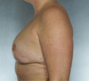 Breast Reconstruction Before & After Patient #9380