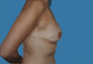 Breast Reconstruction Before & After Patient #9375