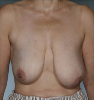 Breast Reconstruction Before & After Patient #8345