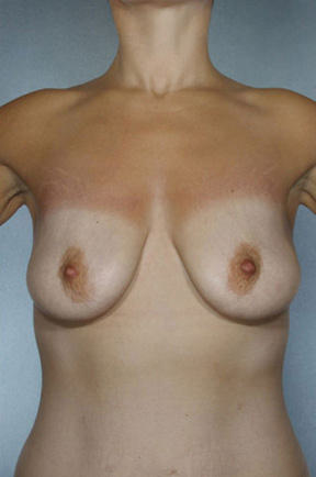 Breast Lift Before & After Patient #8494