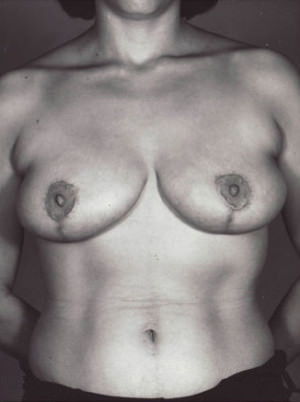 Breast Reduction Before & After Patient #8398