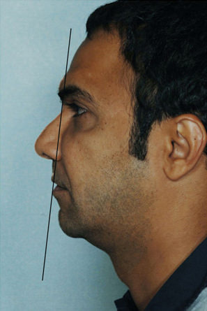 Facelift Before & After Patient #9231