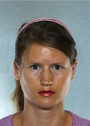 Otoplasty Before & After Patient #9194
