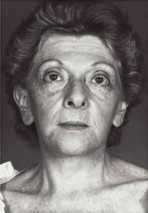 Facelift Before & After Patient #9324