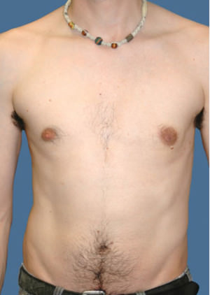Gynecomastia Before & After Patient #8416
