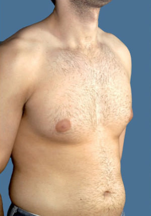 Gynecomastia Before & After Patient #8421