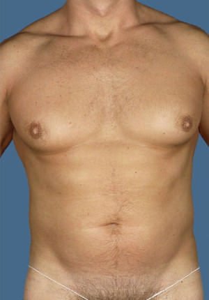 Gynecomastia Before & After Patient #8427