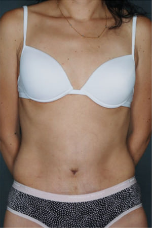 Tummy Tuck Before & After Patient #8053