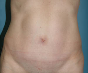 Tummy Tuck Before & After Patient #8058