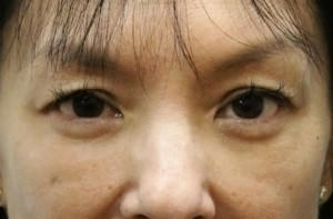 Blepharoplasty Before & After Patient #8891