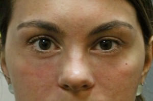 Blepharoplasty Before & After Patient #8896