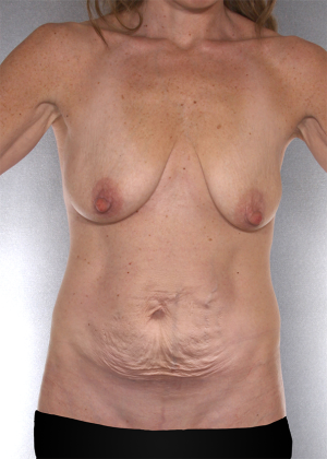 Tummy Tuck Before & After Patient #8064