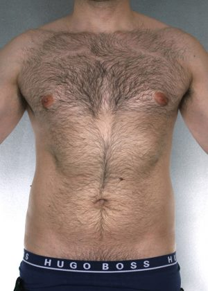 Liposuction Before & After Patient #8774