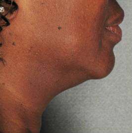 Ultherapy Before & After Patient #9366
