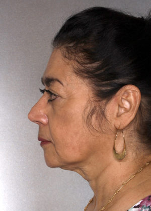 Facelift Before & After Patient #9334