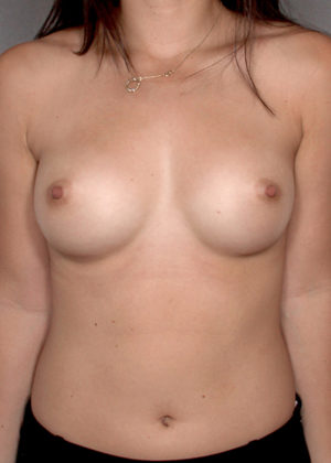 Breast Augmentation Before & After Patient #8196