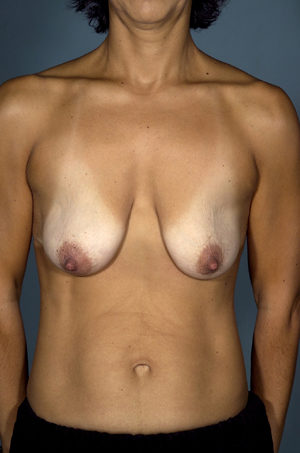 Breast Lift Before & After Patient #8500