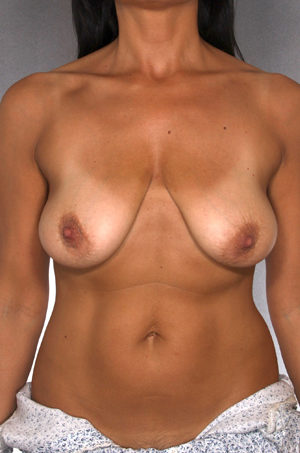 Breast Lift Before & After Patient #8505