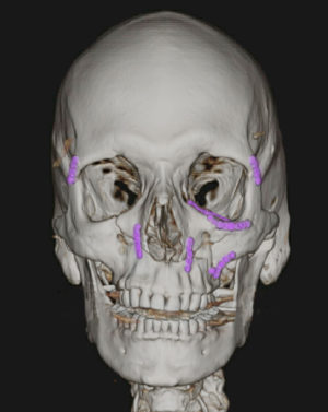 Facial Bone Fractures Before & After Patient #9393