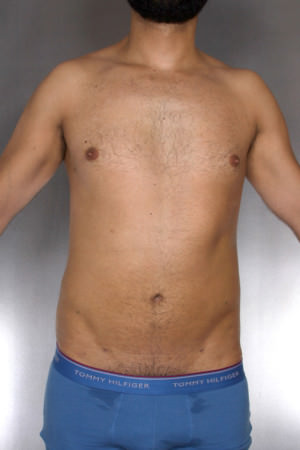 Liposuction Before & After Patient #8762