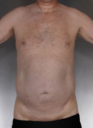 Liposuction Before & After Patient #8769