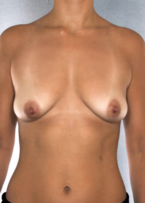 Breast Augmentation Before & After Patient #8186