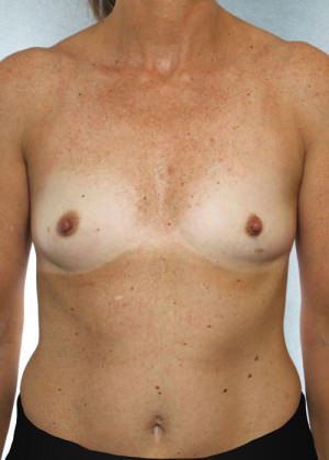 Breast Augmentation Before & After Patient #8191