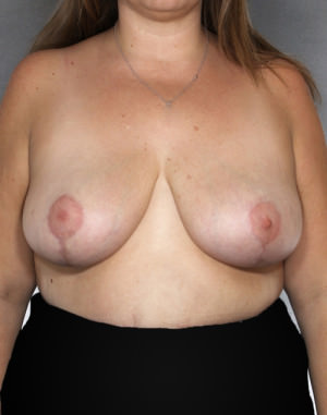 Breast Reduction Before & After Patient #8401
