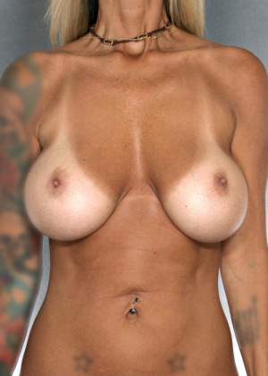 Breast Reduction Before & After Patient #8406