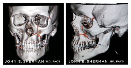 Facial Bone Fractures Before & After Patient #9396